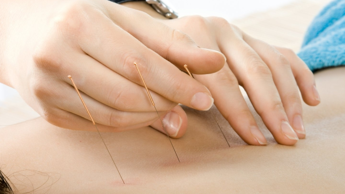 Acupuncture Initial Consultation and Treatment