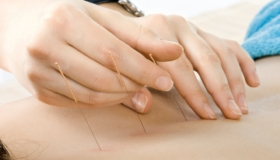 acupuncture limerick