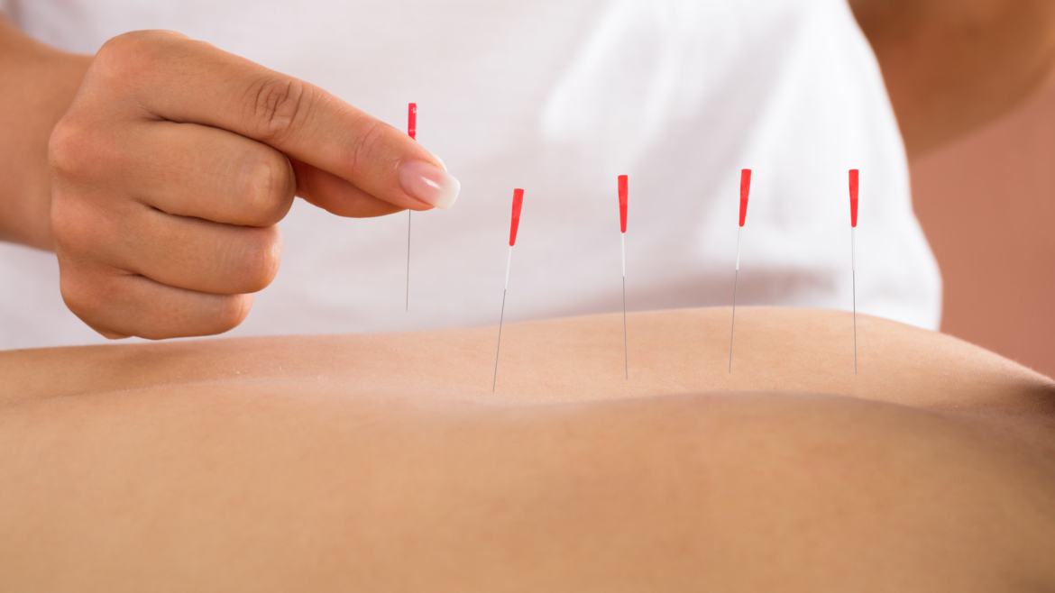 Acupuncture Follow- Up Consultation and Treatment